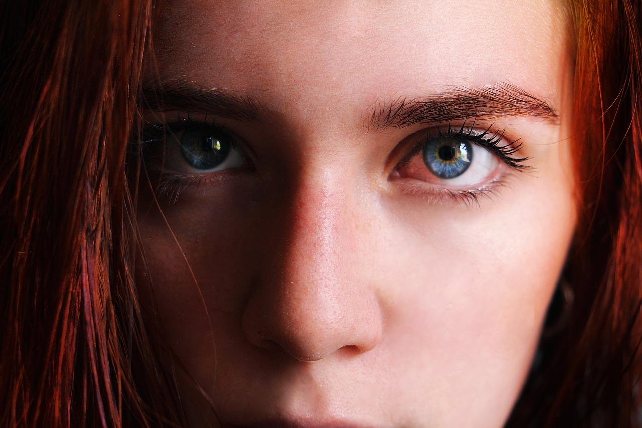 عيون زرقاء ذات تركيز قليل من صبغ الميلانين